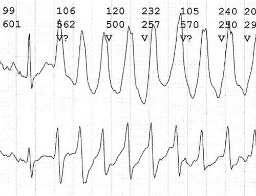 ICD ler (Otomatik Elektroşok Cihazları)