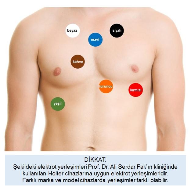 Holter EKG cihazımızın elektrot yerleşimleri